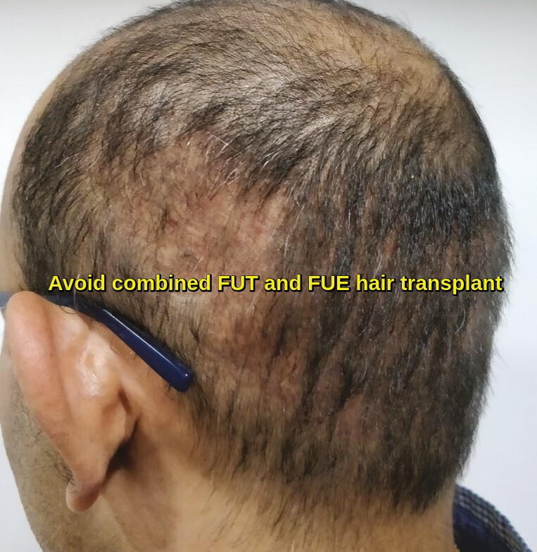 Avoid Combined FUT and FUE hair transplant