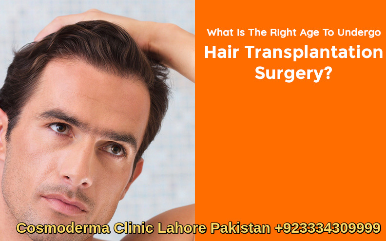 when to get a hair transplant