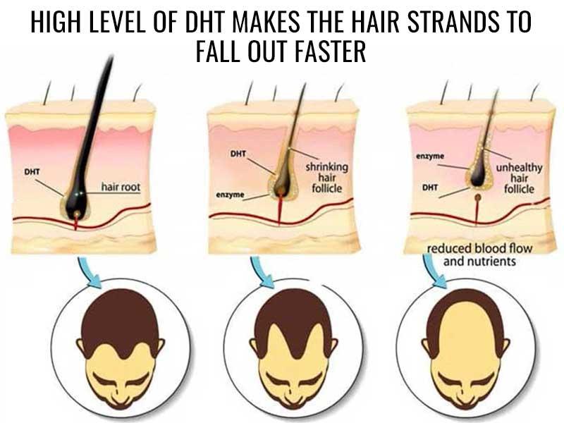 High level DHT hormone impact