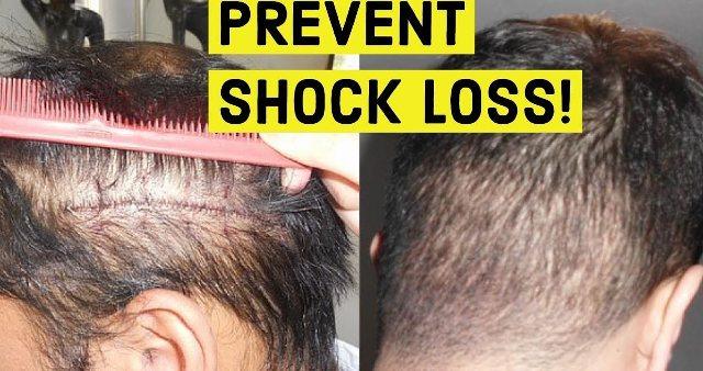 Hair transplant shock loss Lahore