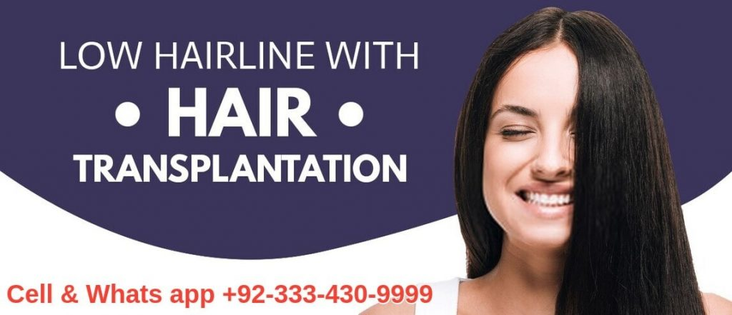 Hairline hair transplant Lahore Pakistan