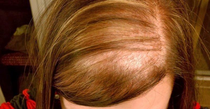 Women hair loss best treatment lahore Pakistan