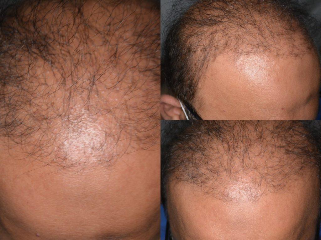 Hair transplants gone wrong