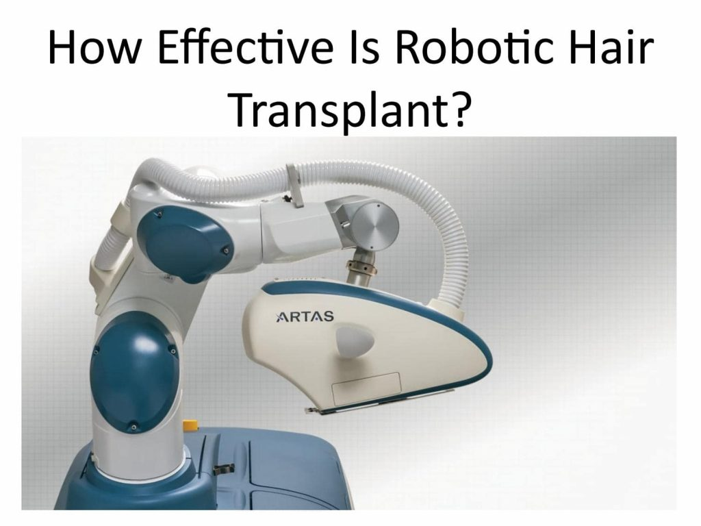 Robotic hair restoration Lahore Pakistan