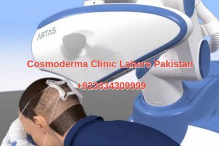 Robotic hair transplant Lahore Pakistan