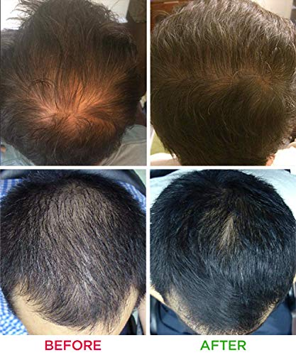 Low level laser hair loss treatment results Lahore