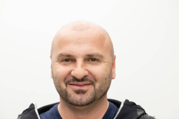 Transplanted hair loss after hair restoration procedure
