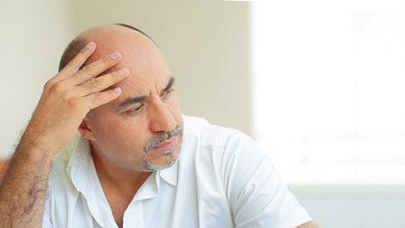 Baldness impact - low self esteem