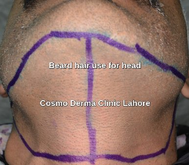 Beard hair combined with scalp donor area