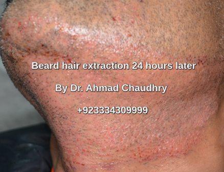 Beard hair use Lahore Pakistan