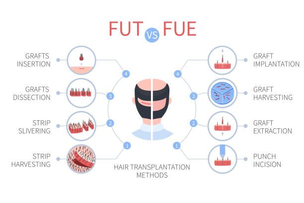 Combo Hybrid hair transplant Lahore