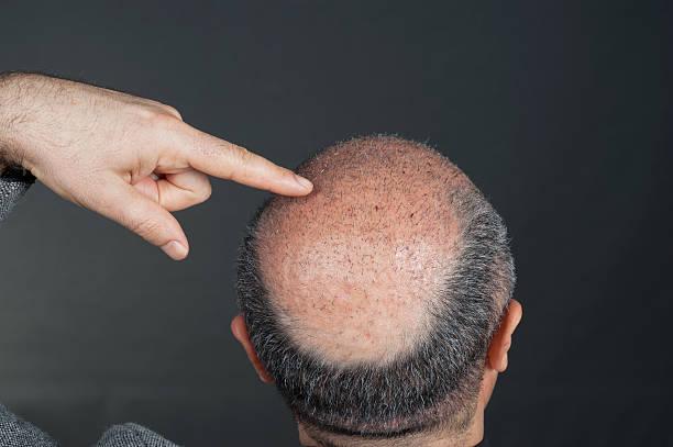 Combo hair transplant surgery