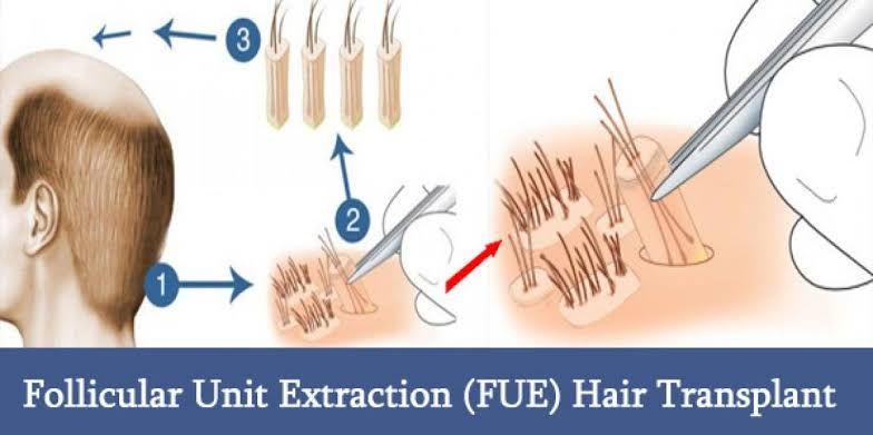 Follicular unit hair transplant disadvantages