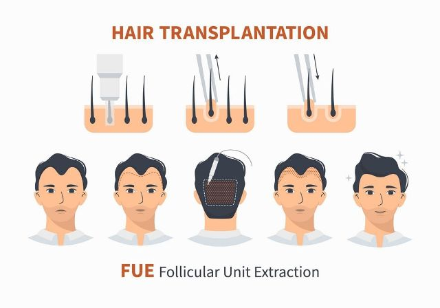 Why follicular unit extraction