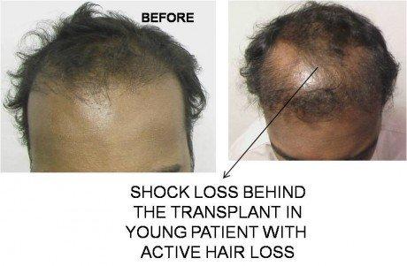 Hair transplant shock loss recipient zone Lahore