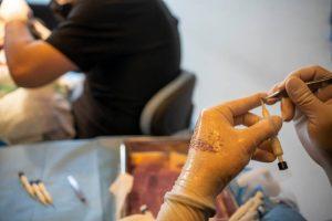 latest hair transplant technique DHI Lahore