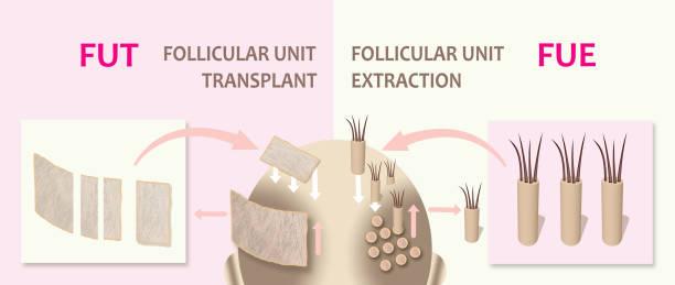 Hair growth through transplantation surgery