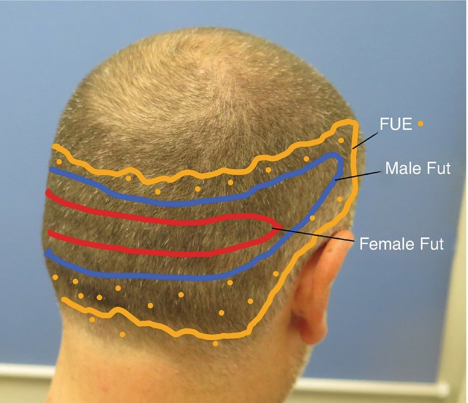 life of hair transplant results Lahore Pakistan