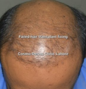 Hair restoration surgery failure